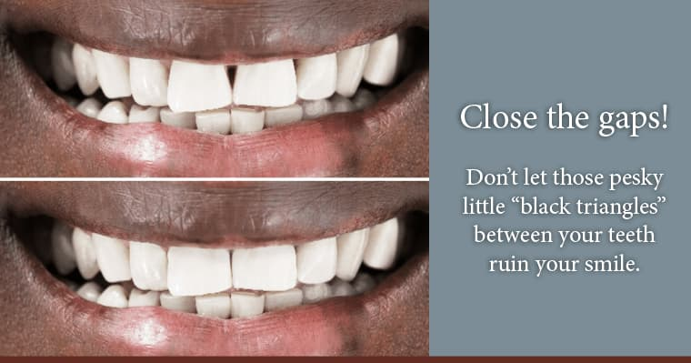 Before and after of smile treated with Bioclear. Close the gaps with Bioclear!