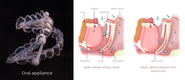 An oral appliance and diagram of obstructed airway to show how oral appliances can be effective for sleep apnea treatment.